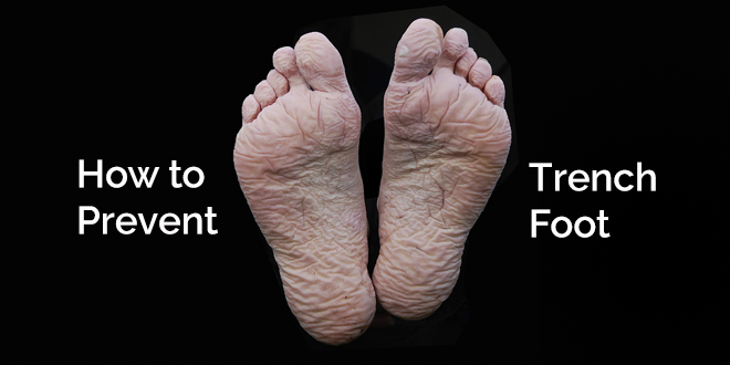 How To Prevent Trench Foot 5 Tips For Protecting Your